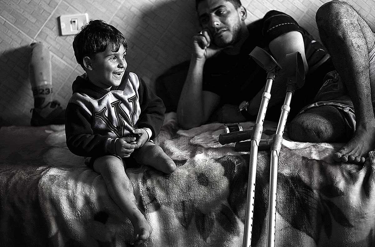 Wael Al-Namla, 27, sits with his son three years old Shareif In their house in Al- Joneina neighbourhood in the east of Rafah town in the southern Gaza Strip on 17 March 2015. Wael Al Namla, 27, his wife Israa, 21, and their son Shareif three years old, three of them lost the lower lips together to one Israeli bomb when they were trying to find a safe place to stay at, following a 72-hour ceasefire declaration during the 51 day of war in, 01 Augast 2014.
