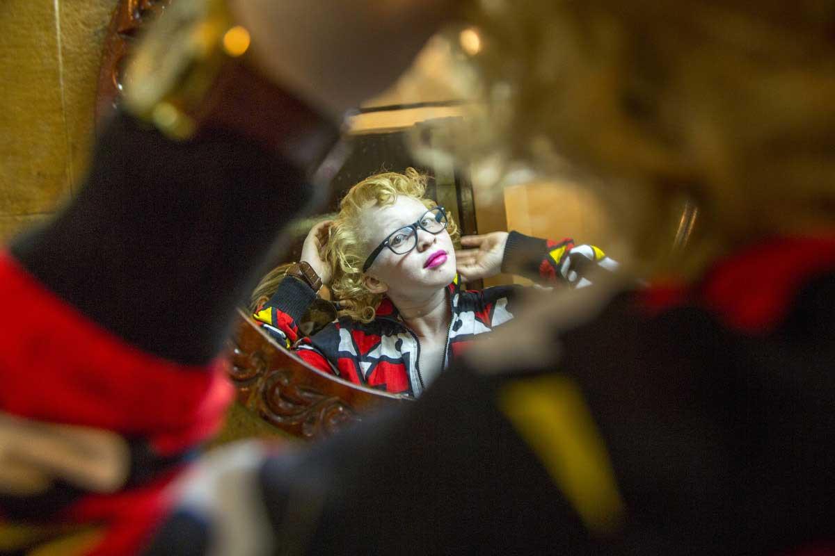 Albinism | Georgina Goodwin