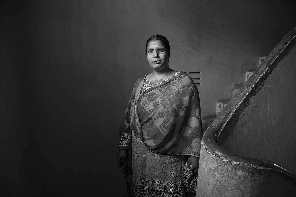 Suraiya, 28 y.o., is a survivor. Attacked by her husband for dowry, she had a facial disfigurement and posted her one eyesight. She denounced her aggressor (perpetrator in in prison life time) and after physical treatment and psychological service at Acid Survivors Foundation in Dhaka, she started to work as survivor ambassador for help other women in same conditions. Suraiya was award from Ministry of Women's Affair of Bangladesh for her courage.