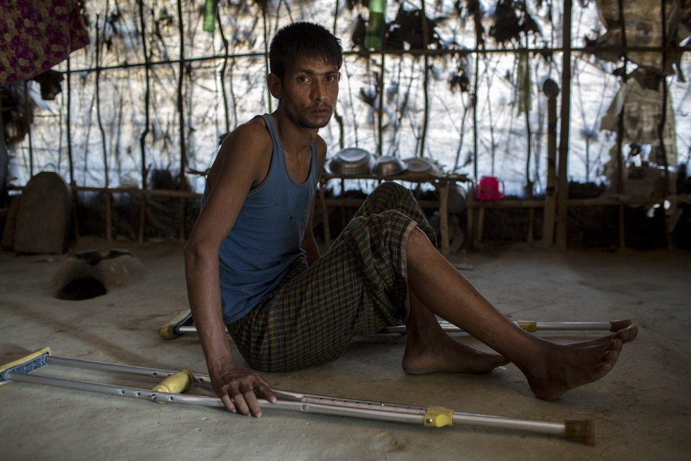 Mohammad Muslim, 30, who fled from recent violence in Myanmar, takes shelter in Balu Kali Rohingya refugee camp, Coxs Bazar. Burmese military shot him in his leg as he was fleeing.