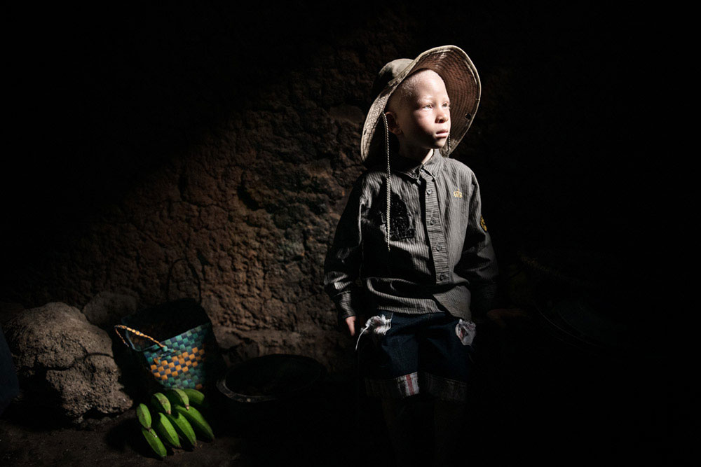 Disabled in Rwanda by Lukasz Sokol